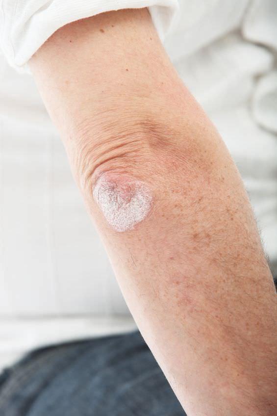 Los métodos del tratamiento de la psoriasis el medio público