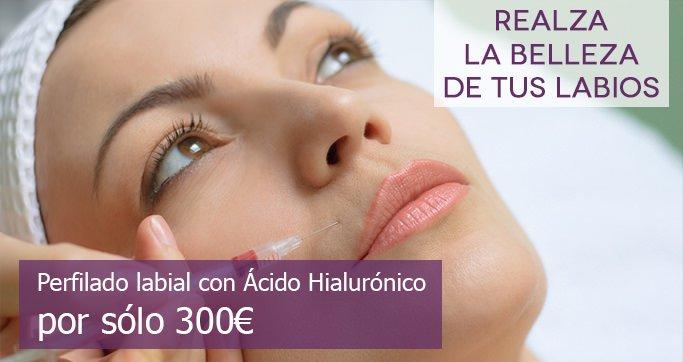 relleno-labios-acido-hialuronico3
