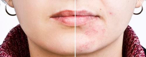 Clínica dermatología Madrid acné adultos