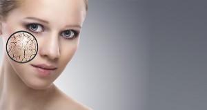Dermatología clínica y quirúrgica. Cuperosis