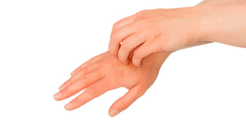 Clínica dermatológica - eccema