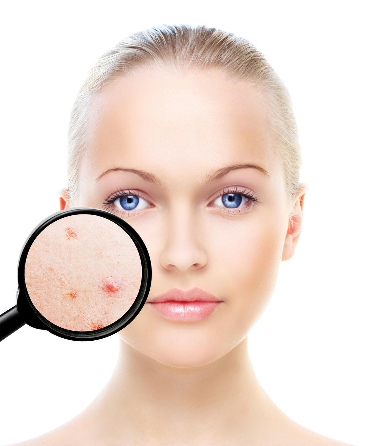 eliminar acne
