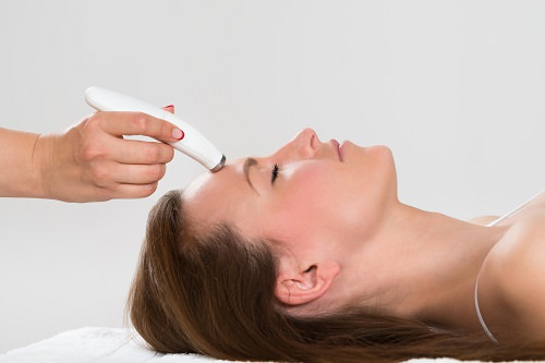combatir manchas solares láser dermatológico