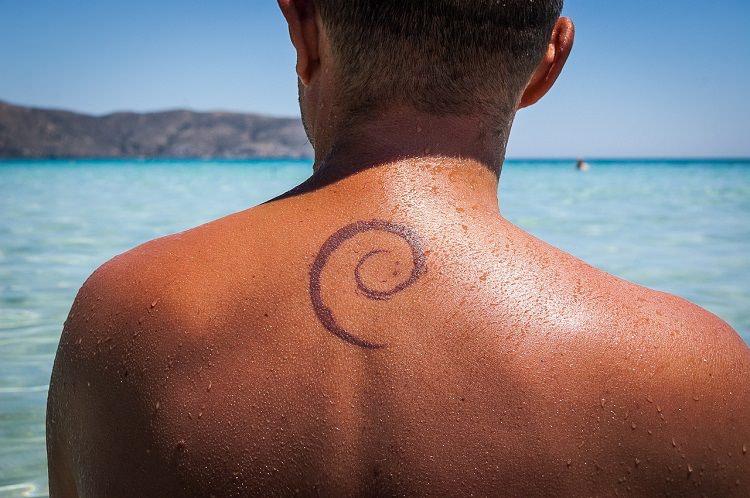 eliminar tatuajes Madrid