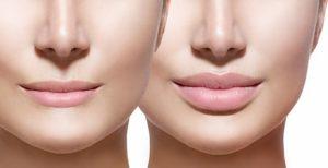 perfilado acido hialuronico en labios