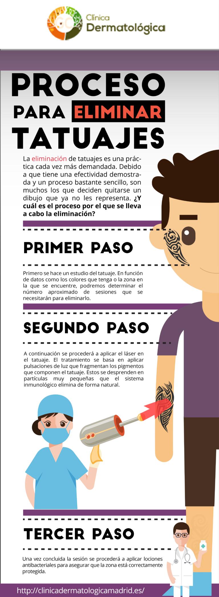 eliminar-tatuajes-madrid