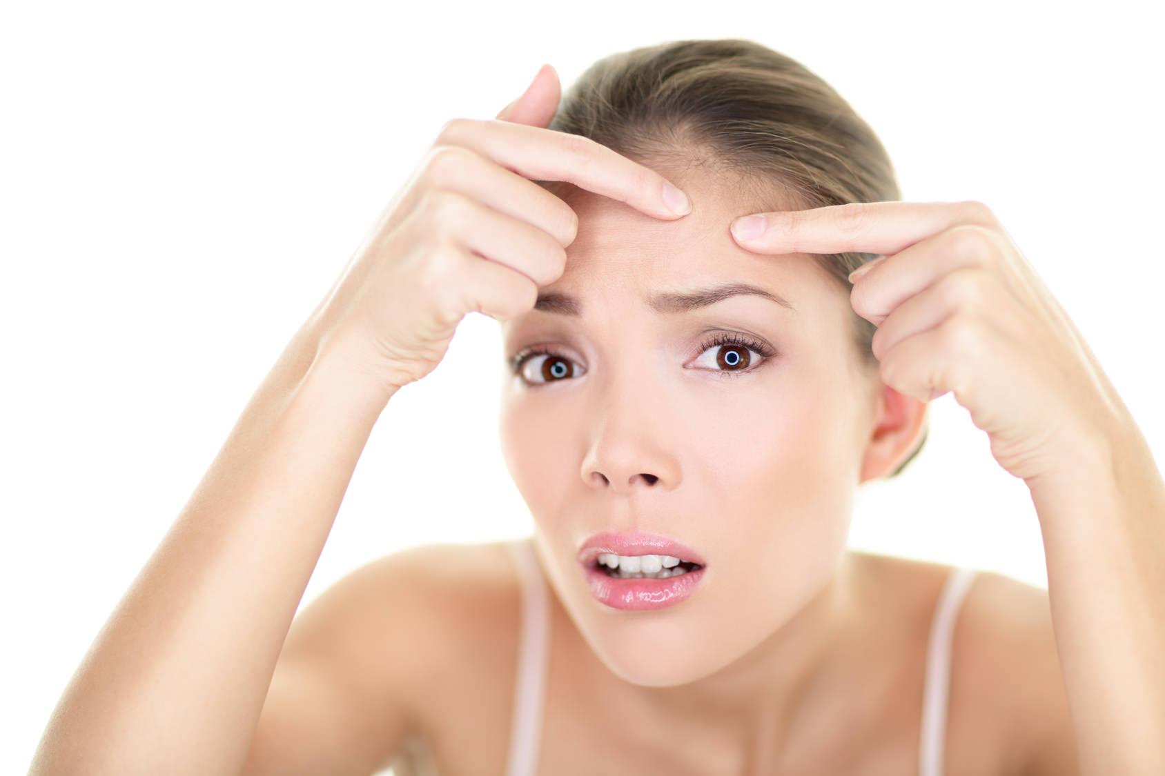 Tratamientos de acné