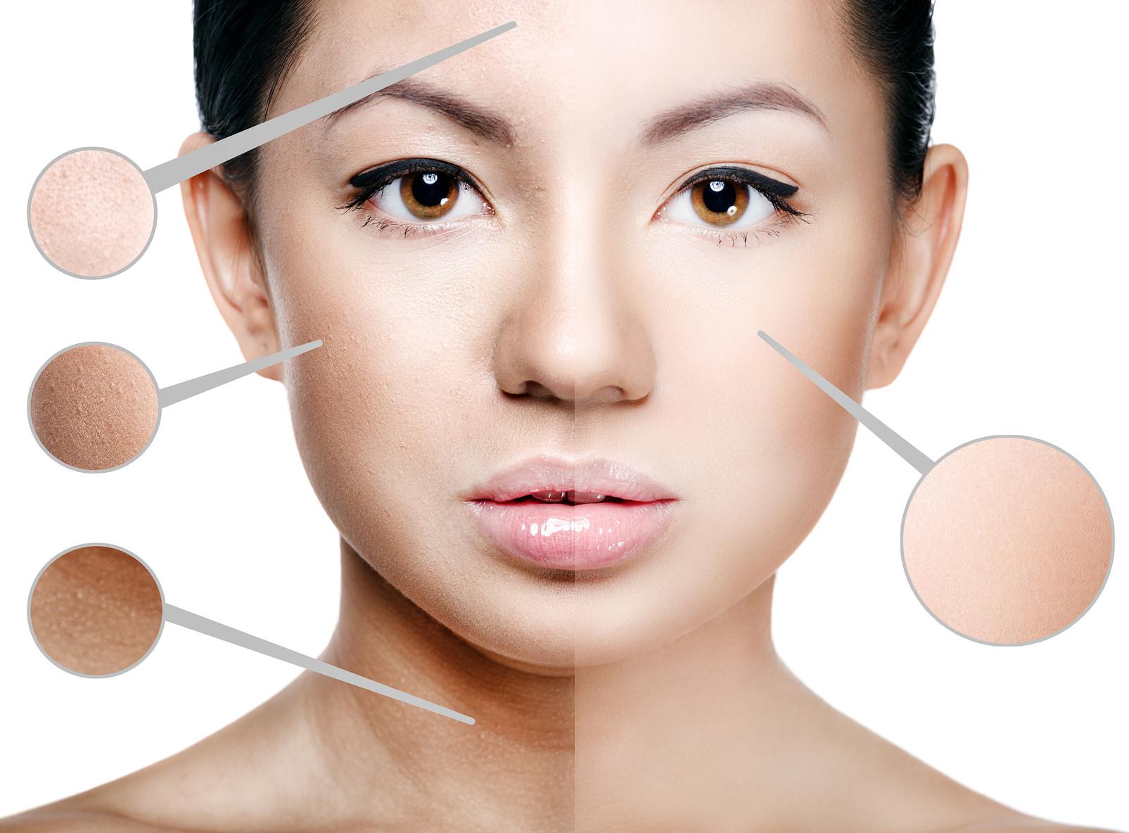 Beneficios rejuvenecimiento facial