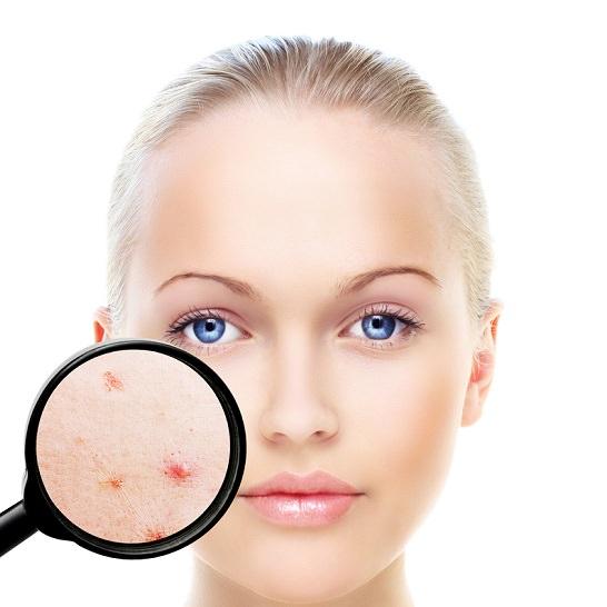 clínica dermatológica Madrid cloasma cómo tratar el cloasma