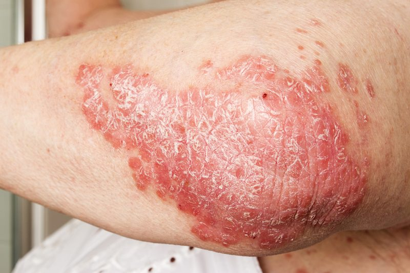 clinica dermatologica madrid