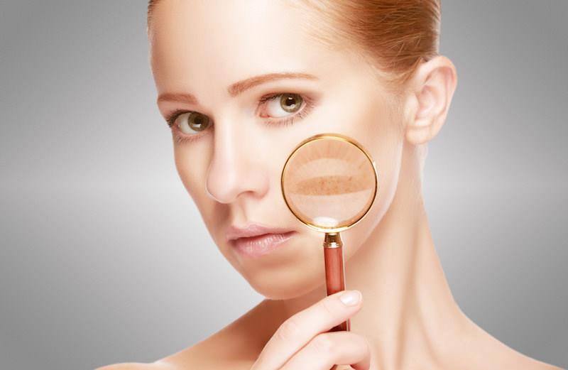 Tratamientos de Peeling en Clínica Dermatológica Madrid