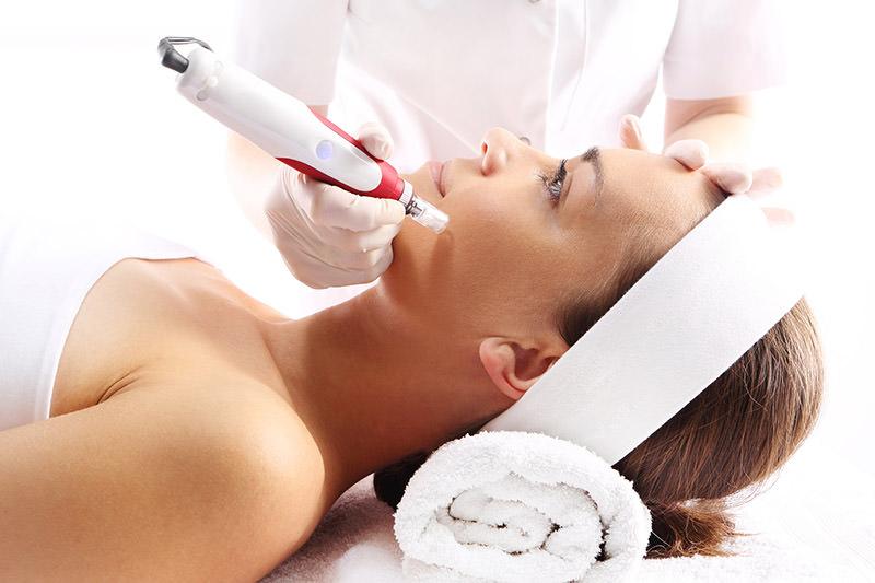 laser dermatologico acne