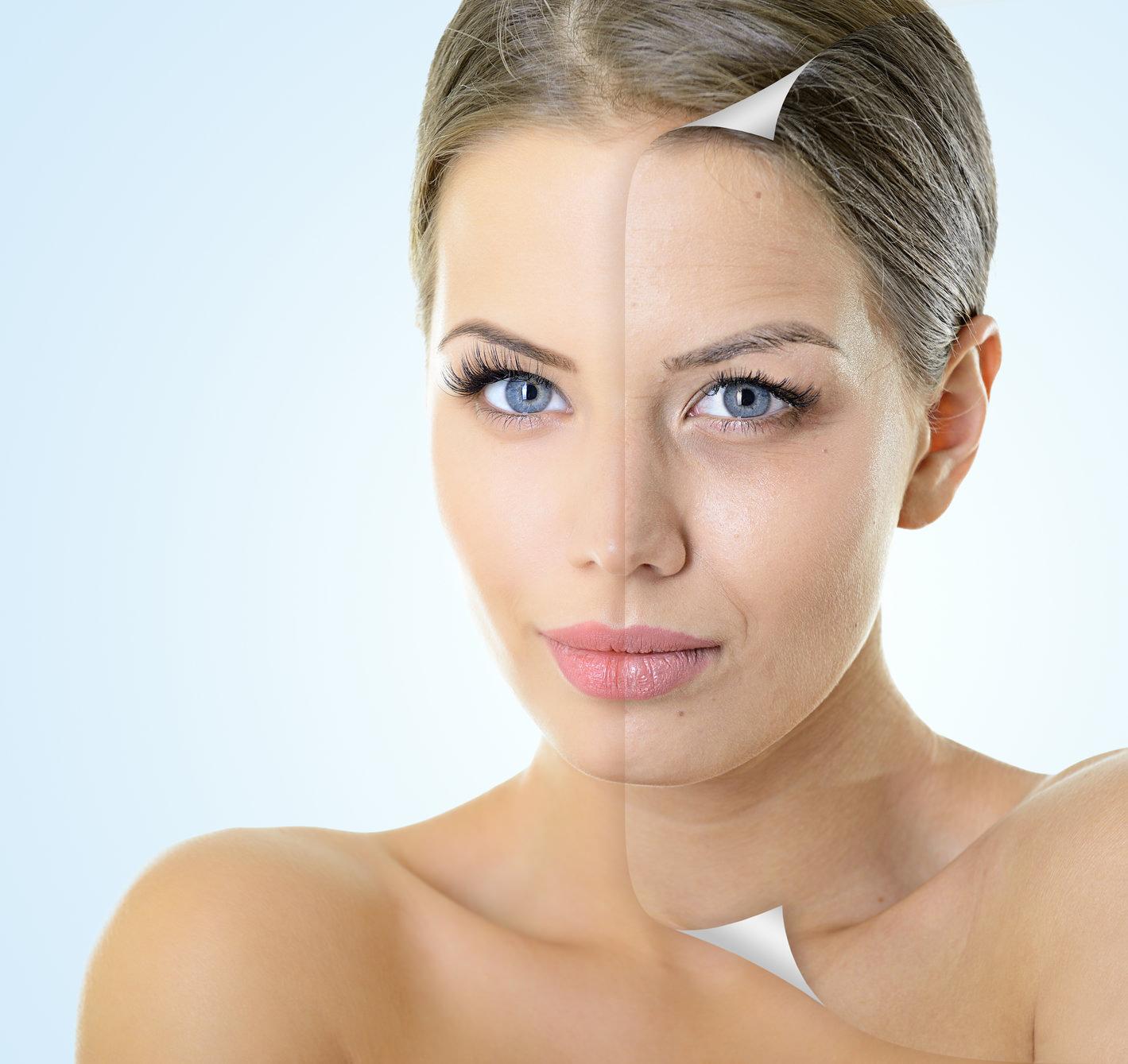 Qué debo tener en cuenta al escoger un rejuvenecimiento facial