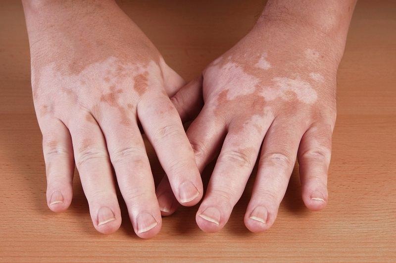 clinica dermatologica madrid vitiligo
