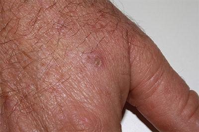 aspecto de las queratosis actínicas - Clínica dermatológica Madrid