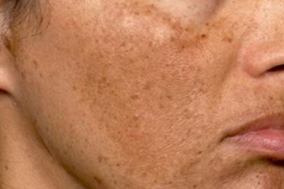 Rejuvenecimiento facial con láser no agresivo